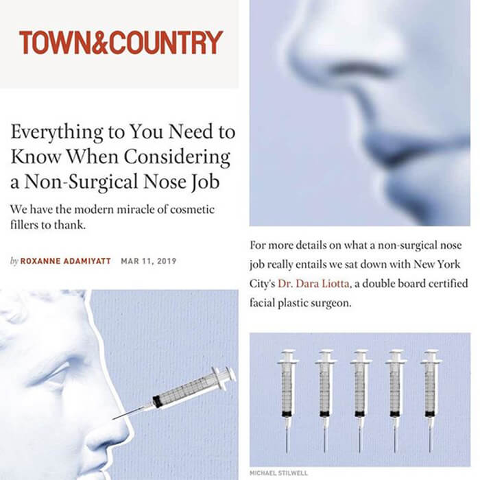 Media article: Town & Country - Everything you need to know when considering a non-surgical nose job